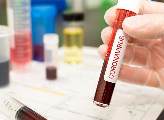 Астанада тағы да 11 адамнан коронавирус анықталды